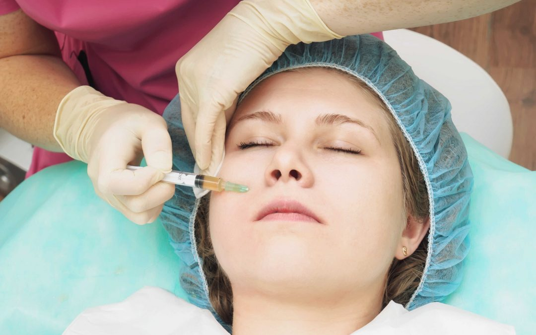 microneedling for scars on face in bangalore