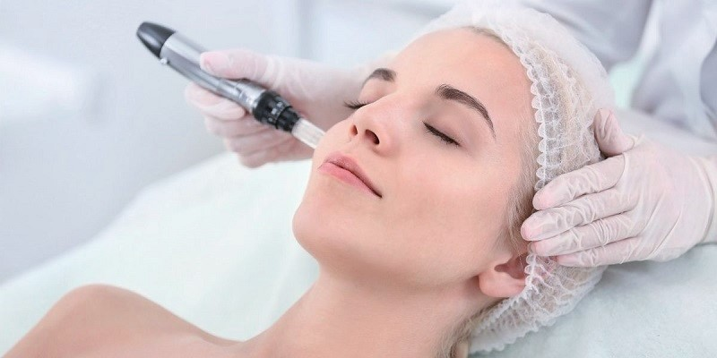 Microneedling for acne scars, microneedling for acne scars near me